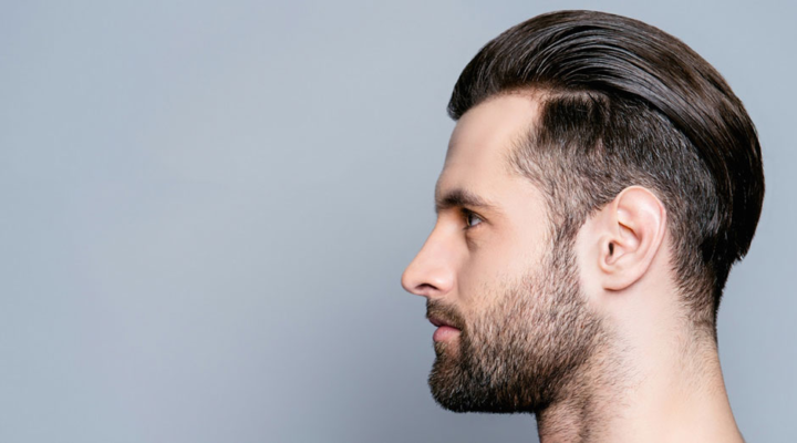 The Real Reasons Men are Travelling To Turkey For a Hair Transplant